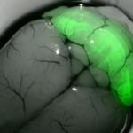 GFP mouse brain, Yann Humeau