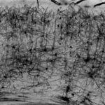 Golgi staining of brain slice, Maïté Moreau