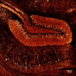 Confocal imaging of mouse hippocampus,Patrice Mascalchi & julie Angibaud